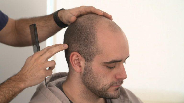 réaliser une greffe de cheveux