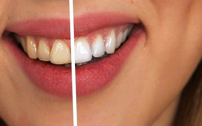 pourquoi utiliser un détartrage dentaire